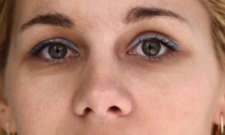 Rezultat posle korekcije lica alatkom Patch Tool