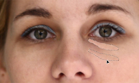 Korekcije linija podočnjaka ispod očiju alatkom Patch