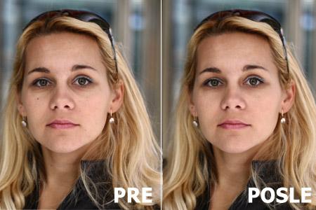Pre i posle korekcija lica, fleka i podočnjaka